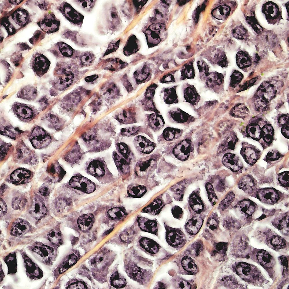 101 0001 skin   malignant melanoma   100x odtmt6