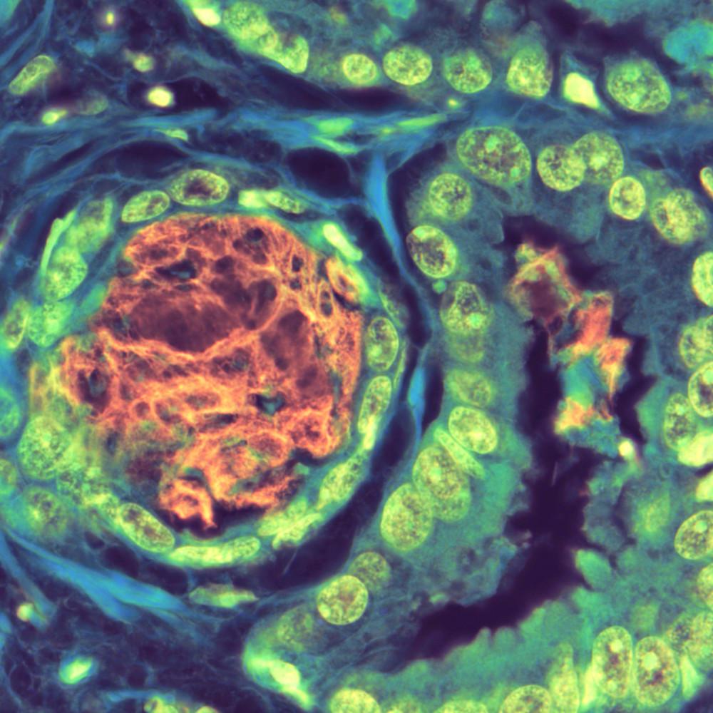 201 0006 prostate   prostate adenocarcinoma with basophilic mucin   100x thmqzd