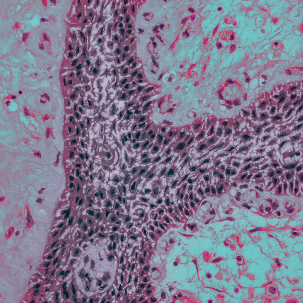 202 0003 brain   craniopharyngioma 40x wiu3b5