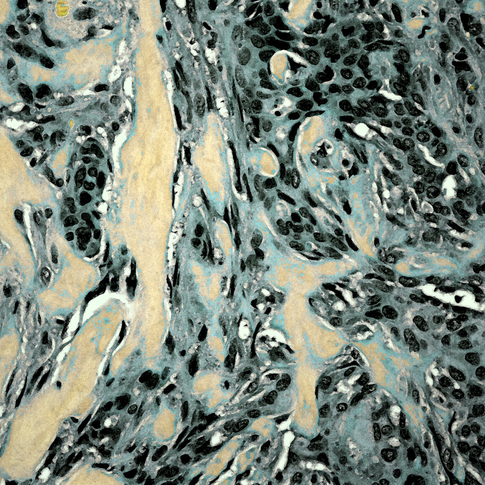 301 0003 breast   low grade adenosquamous metaplastic carcinoma   40x khswh6