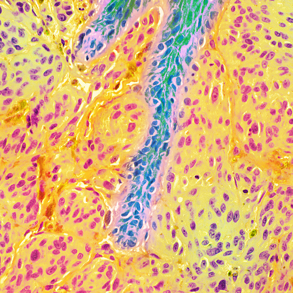 Skin melanoma 40x jiuufz