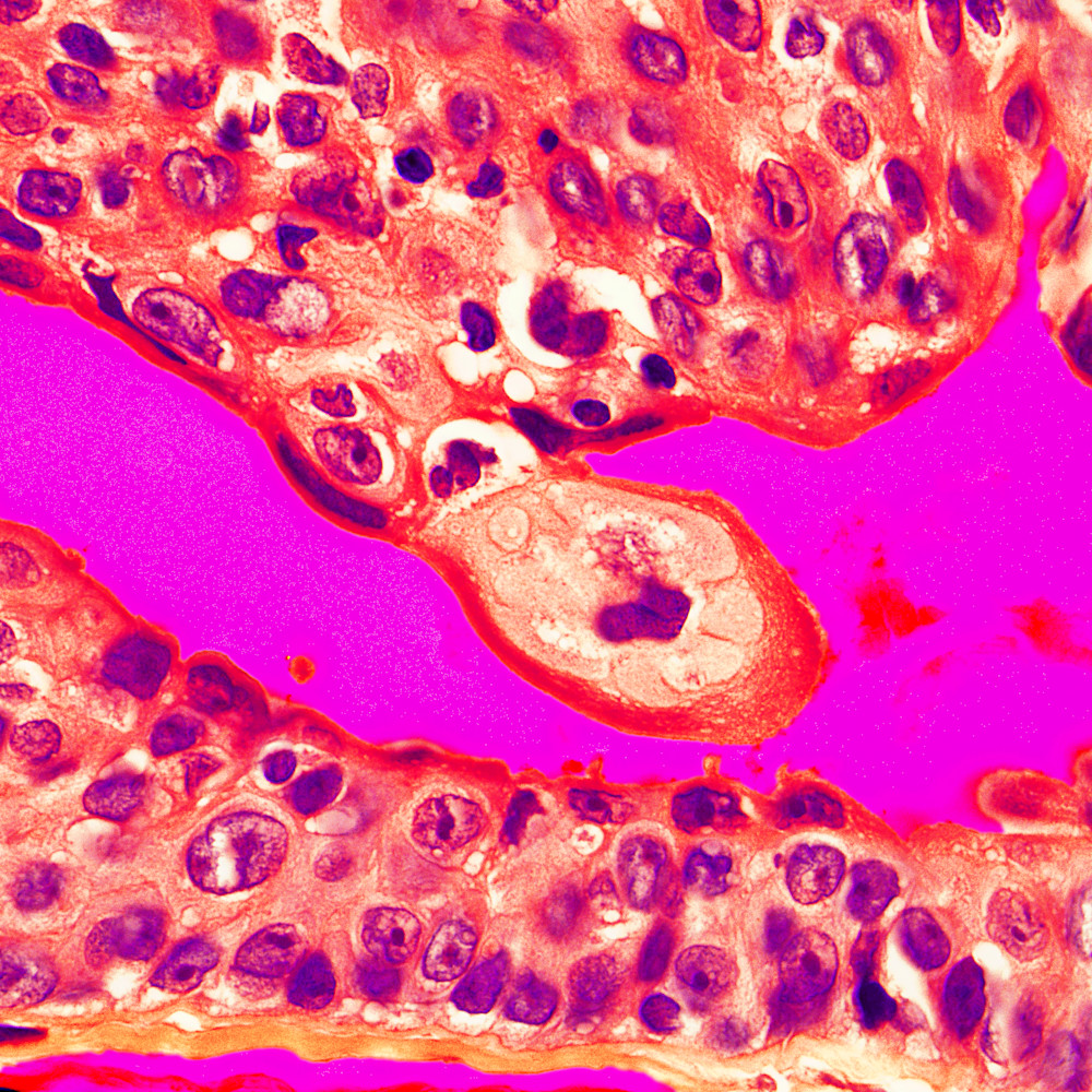 Skin clear cell hidradenoma 100x hjqg4r