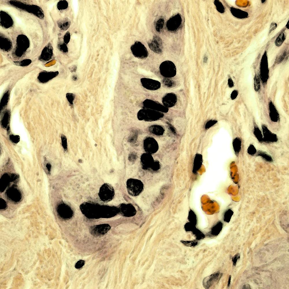 801 0001 thyroid   hyalinizing trabecular tumor   100x vmcqyk
