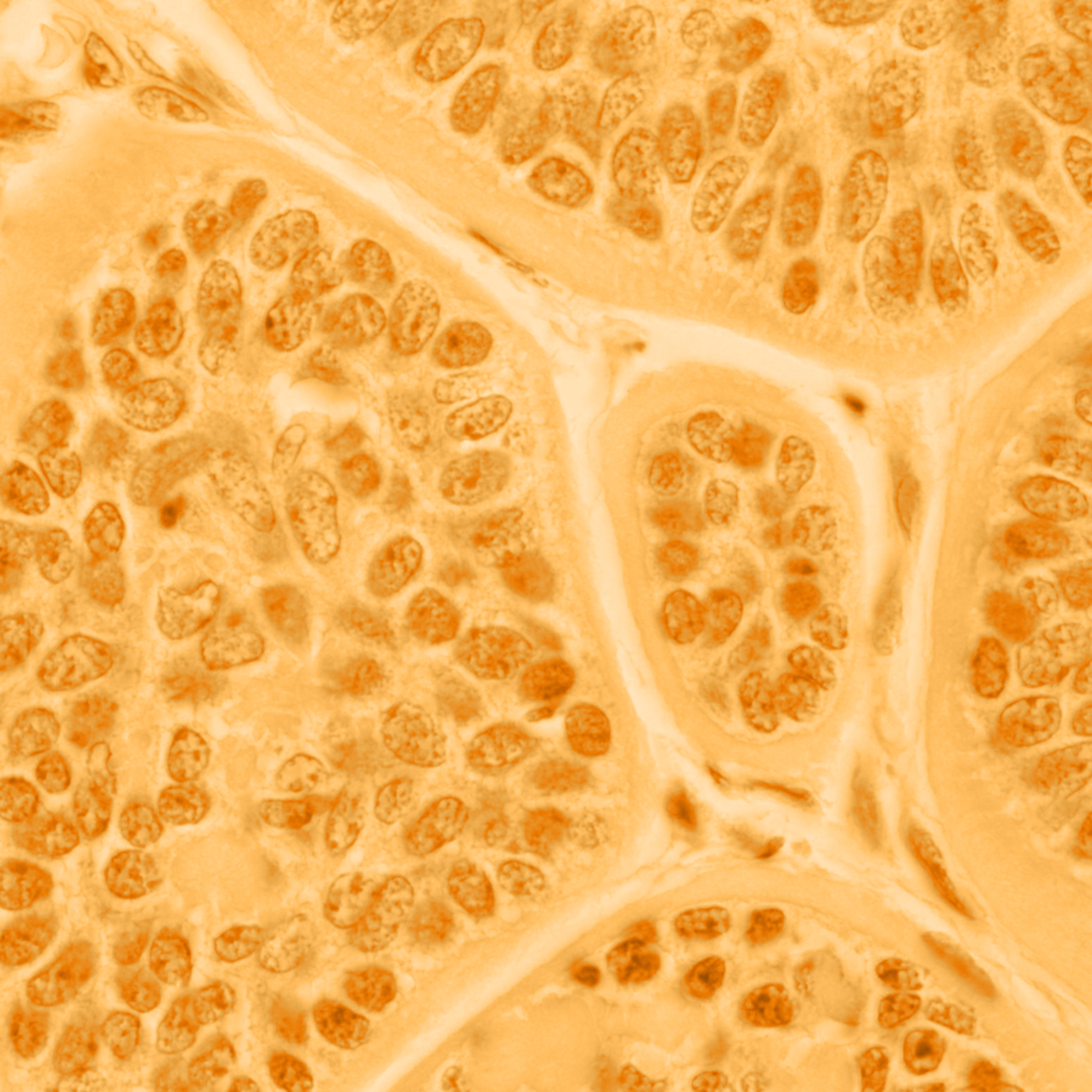 101 0003 skin   cylindroma   100x v1ld7x