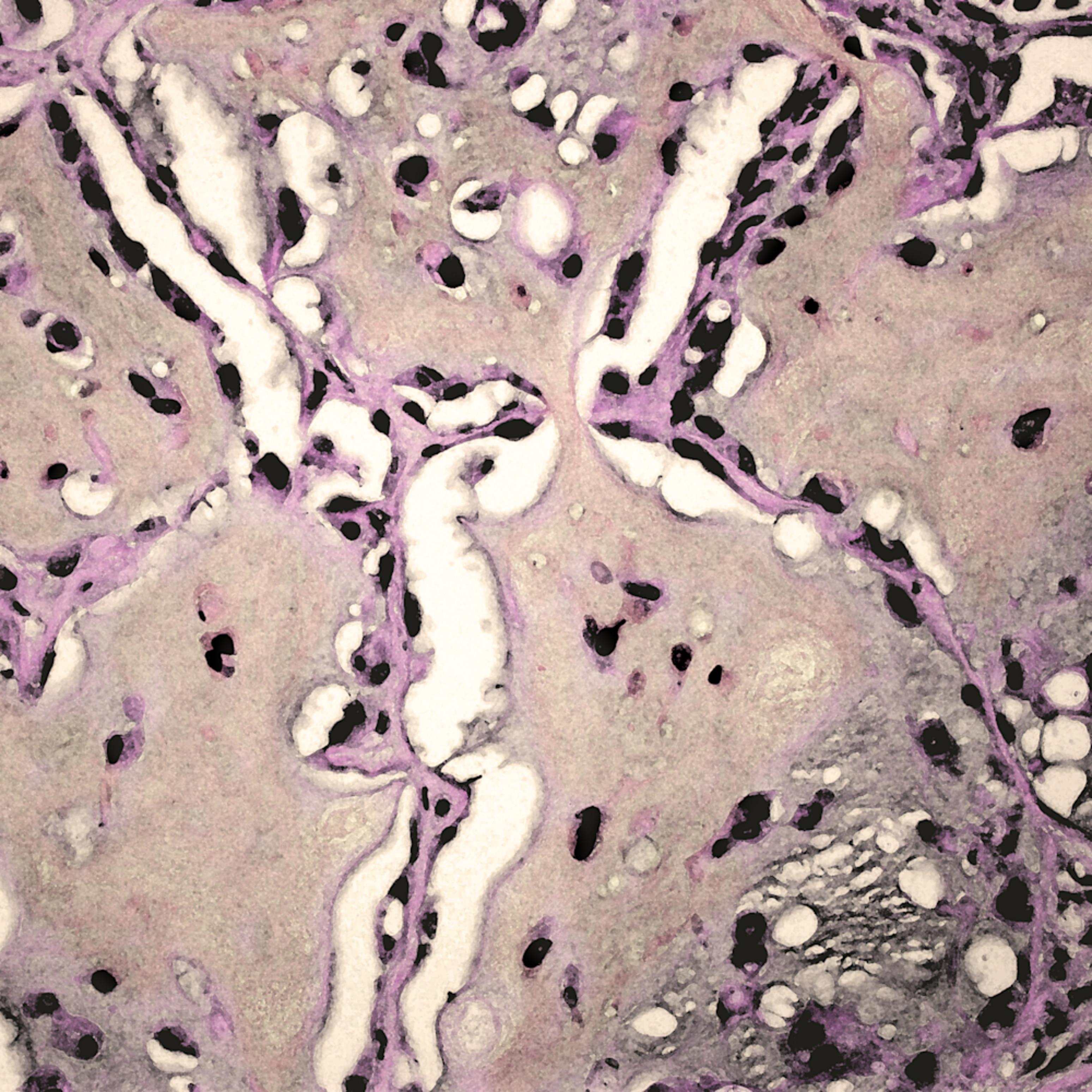 701 0001 lung   epithelioid hemangioendothelioma   40x q6fxh2