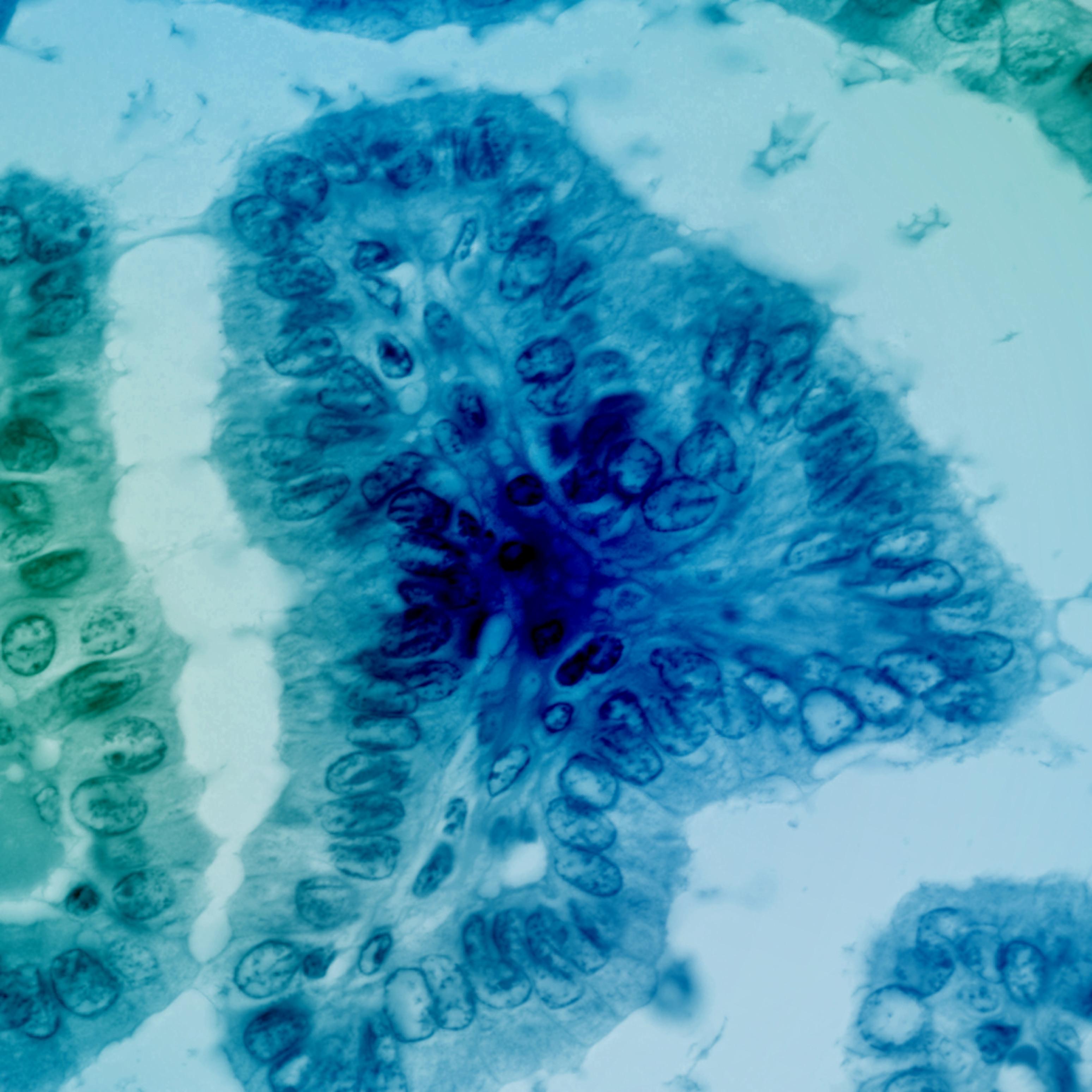 801 0005 thyroid   classic papillary carcinoma   100x lwixys