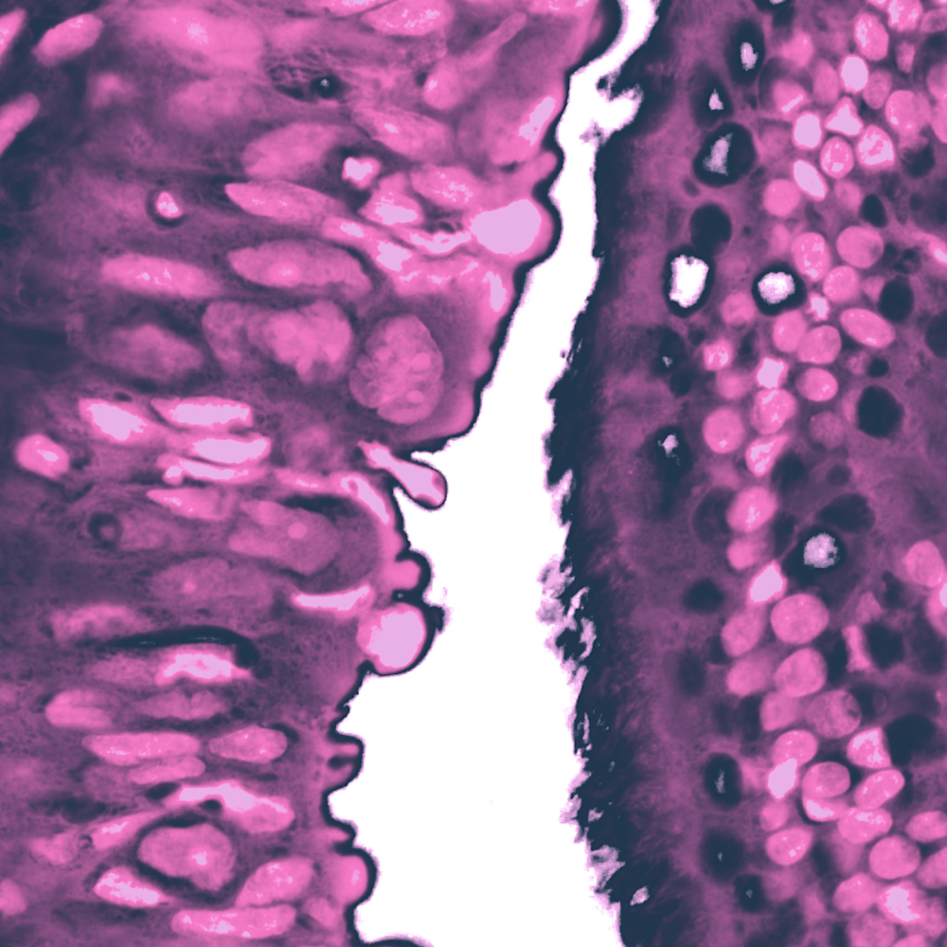 901 0001 womens health   ovary   tubal serous carcinoma   100x ddvov9