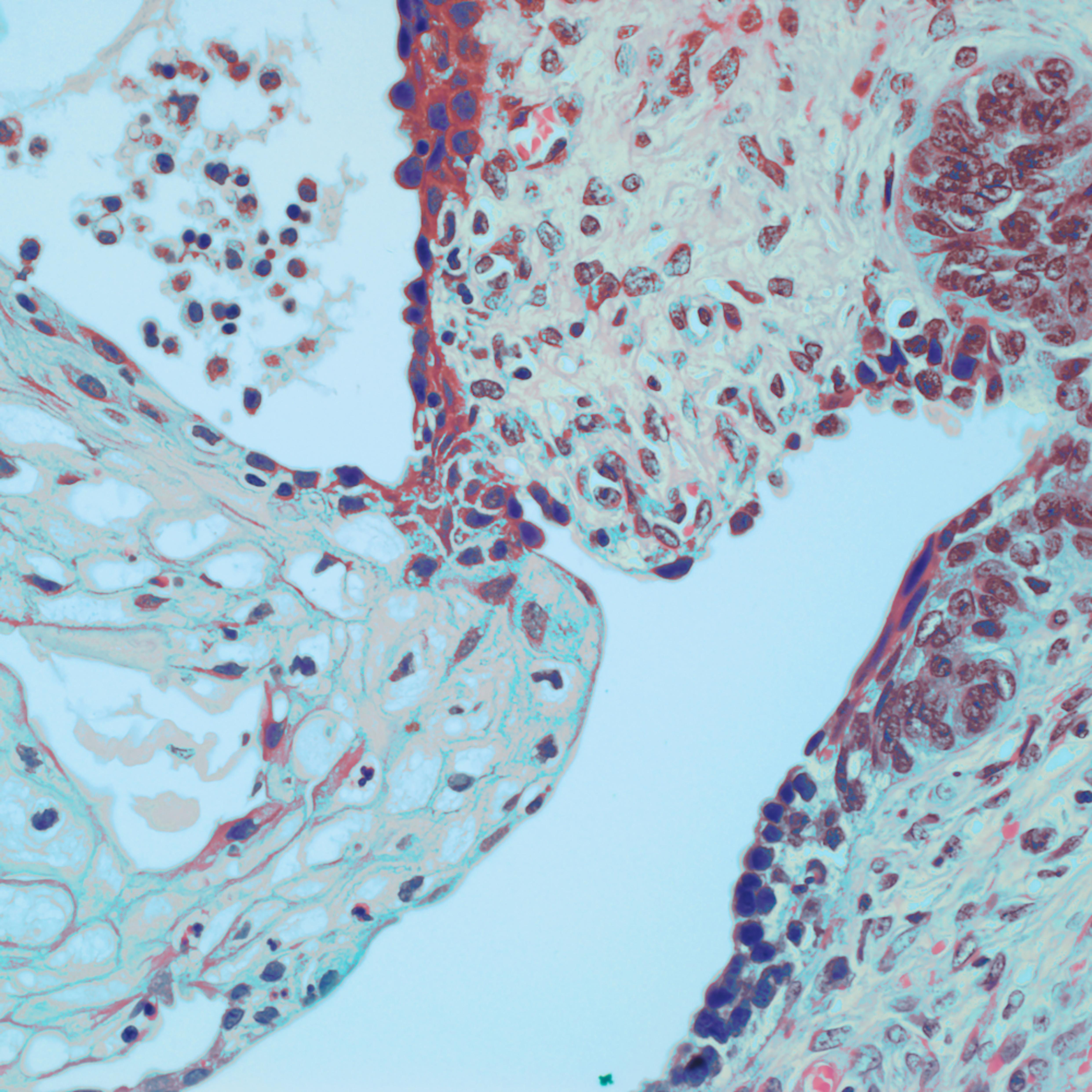 702 0001 testicle   teratoma 40x wt4d4o