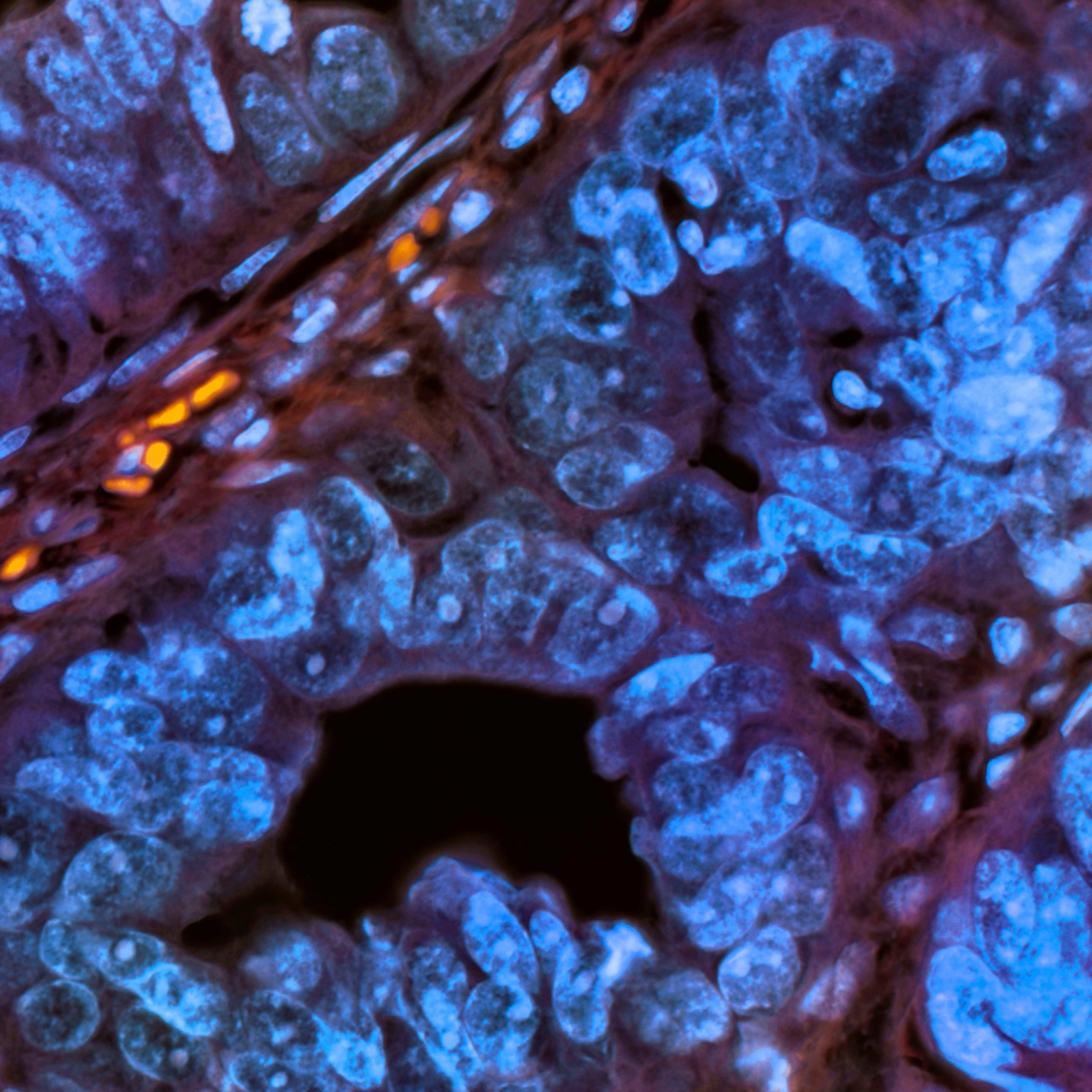 402 0001 bladder wash urothelial carcinoma 40x ypmemt