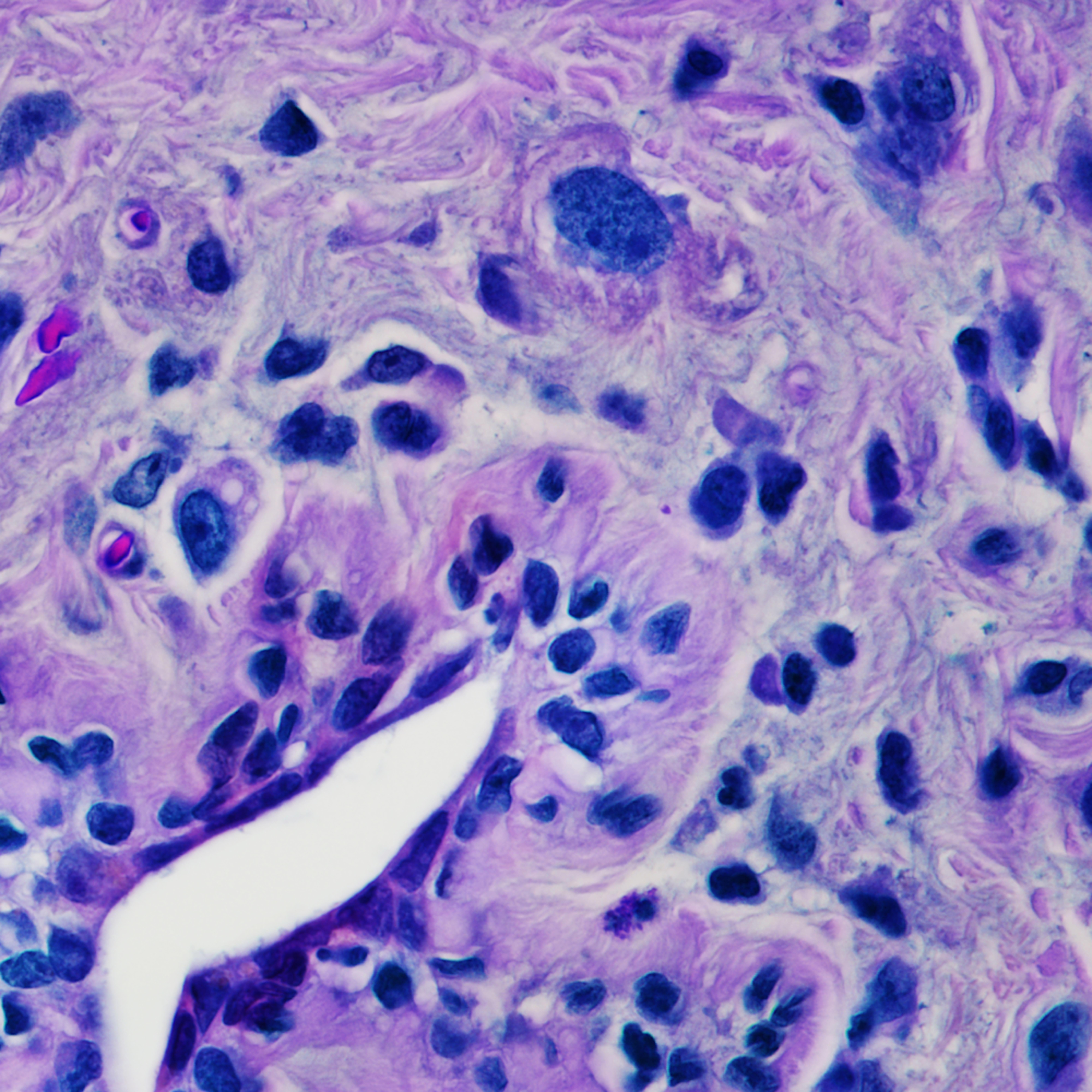 Breast   invasive lobular carcinoma final edit evvjng
