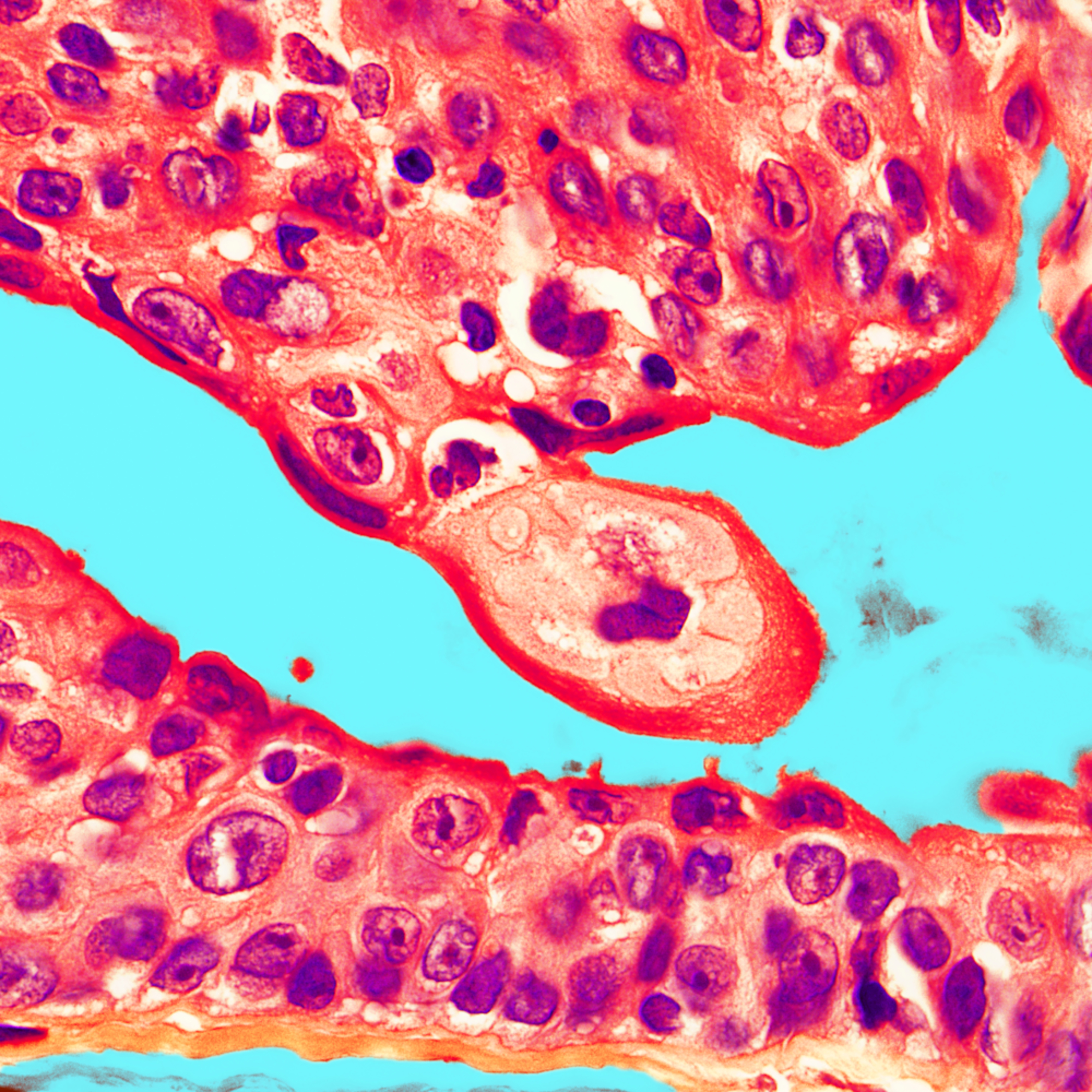 Skin clear cell hidradenoma 100x 2 vzmbim