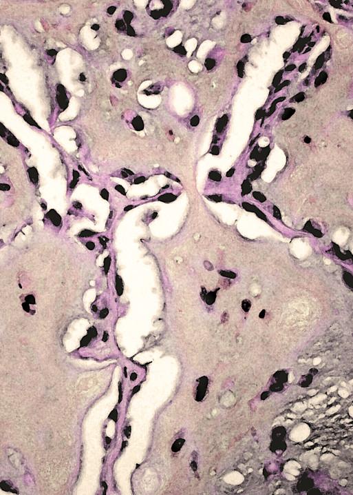 Lung   Epithelioid Hemangioendothelioma Art | Survivor Artwork