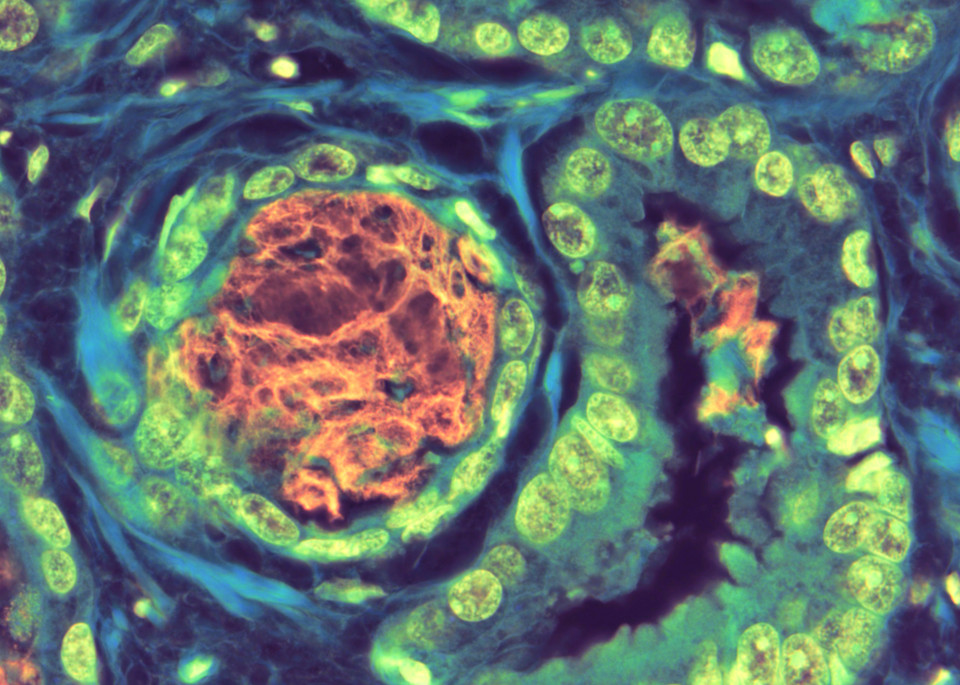 Prostate Adenocarcinoma With Basophilic Mucin Art | Survivor Artwork