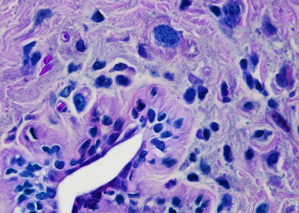 Breast   Invasive Lobular Carcinoma Art | Survivor Artwork