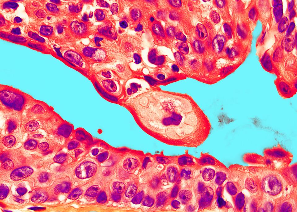 Skin   Clear Cell Hidradenoma Art | Survivor Artwork