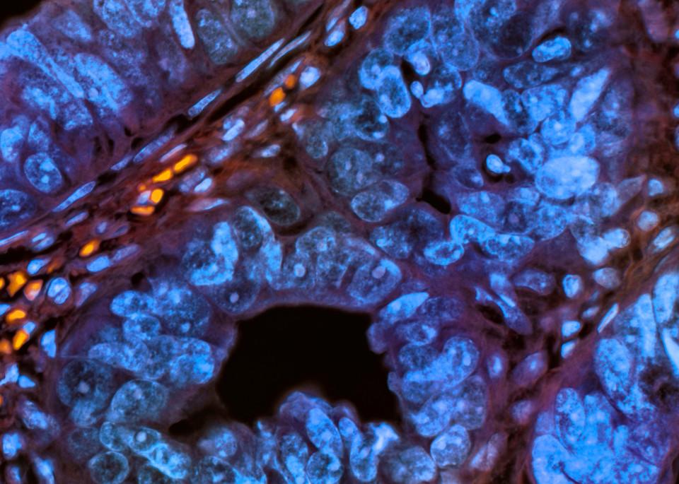 Bladder Wash Urothelial Carcinoma Art | Survivor Artwork