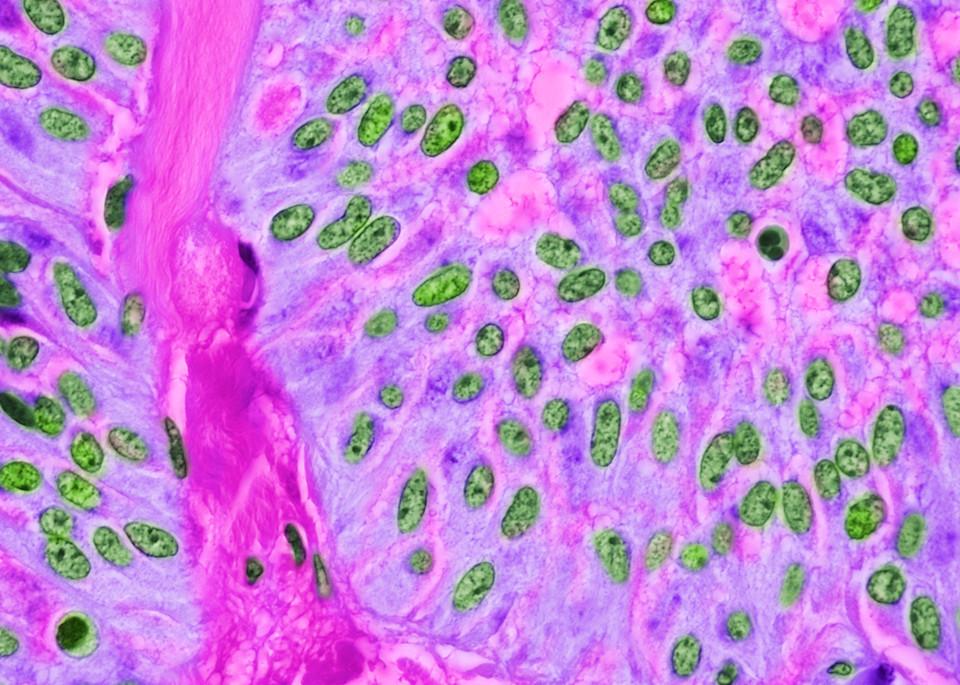 Pancreas   Solid Pseudopapillary Tumor Art   Survivor Artwork