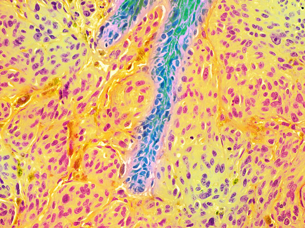 Skin Melanoma  Art | Survivor Artwork