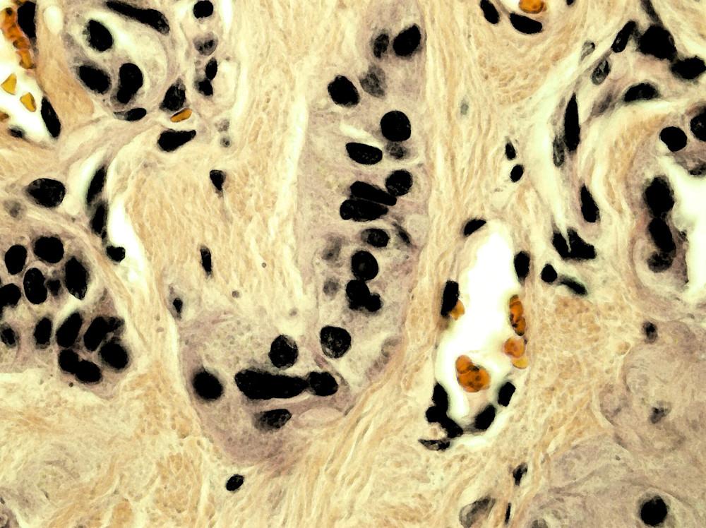 Thyroid   Hyalinizing Trabecular Tumor Art | Survivor Artwork
