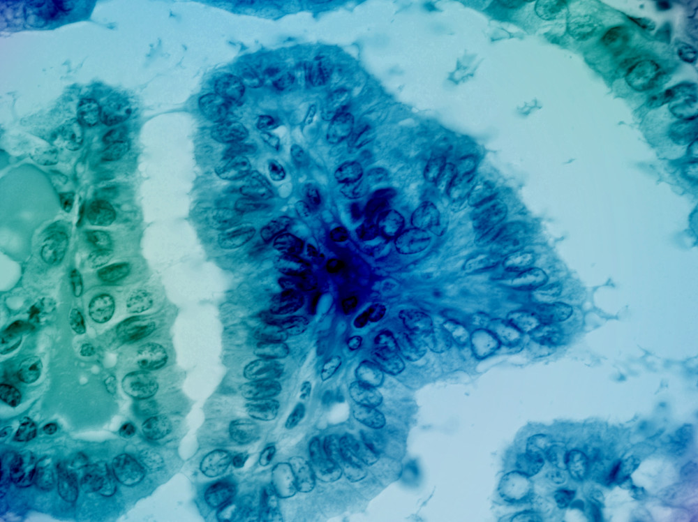 801 0005 Thyroid   Classic Papillary Carcinoma   100 X Art | Survivor Artwork