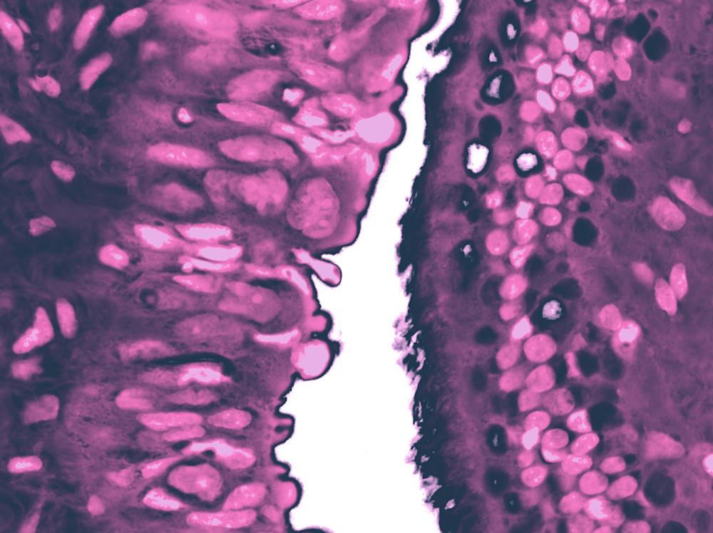 Ovary   Tubal Serous Carcinoma  Art | Survivor Artwork
