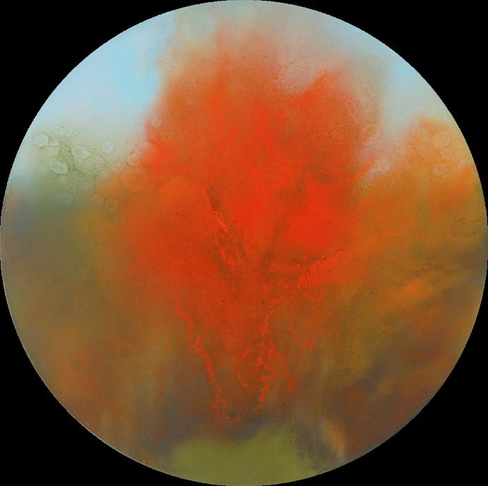 Burning_bush_qxkeal