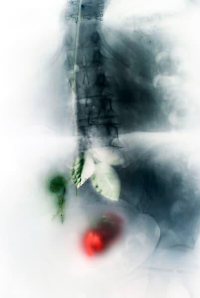 Spine II