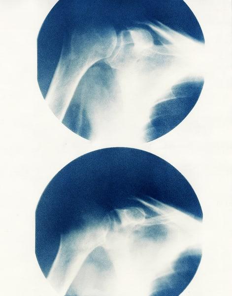 shoulder x-ray cyanotype