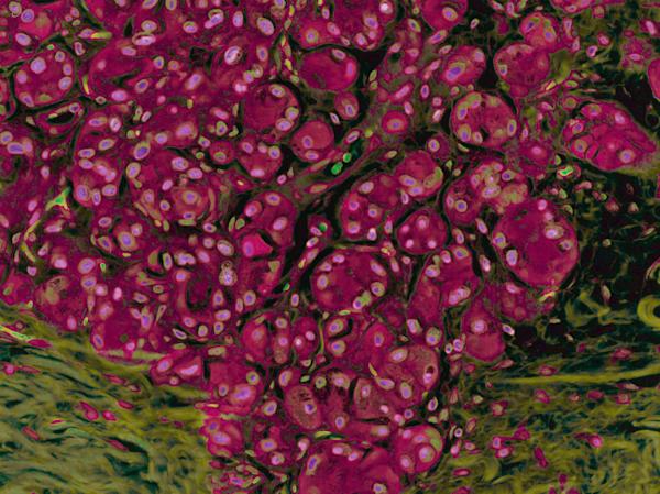 Breast   Acinic Cell Carcinoma Art | Survivor Artwork
