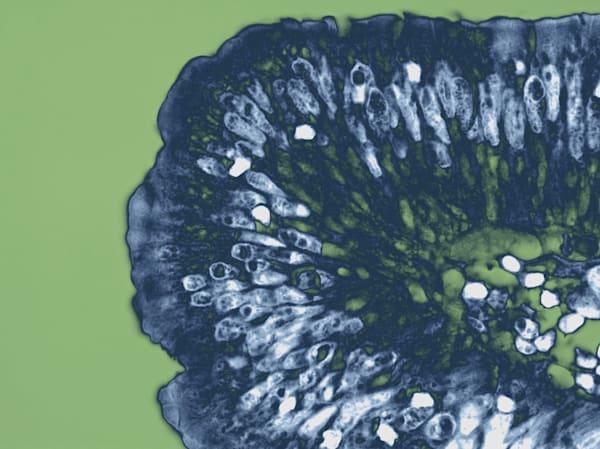 Gastro   Serrated Adenoma  Art | Survivor Artwork