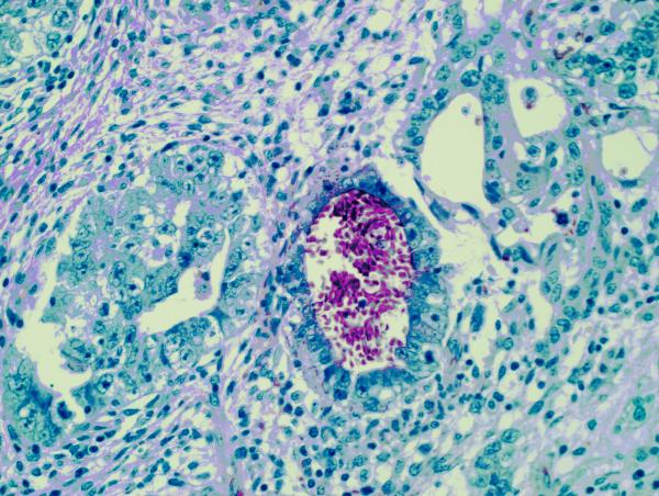Testicle   Mixed Germ Cell Tumor Art | Survivor Artwork