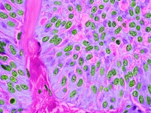 Pancreas   Solid Pseudopapillary Tumor Art | Survivor Artwork